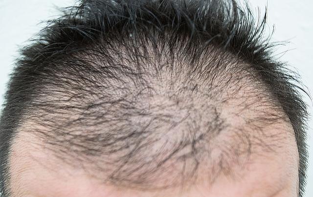 AGA(男性型脱毛症)のタイプ