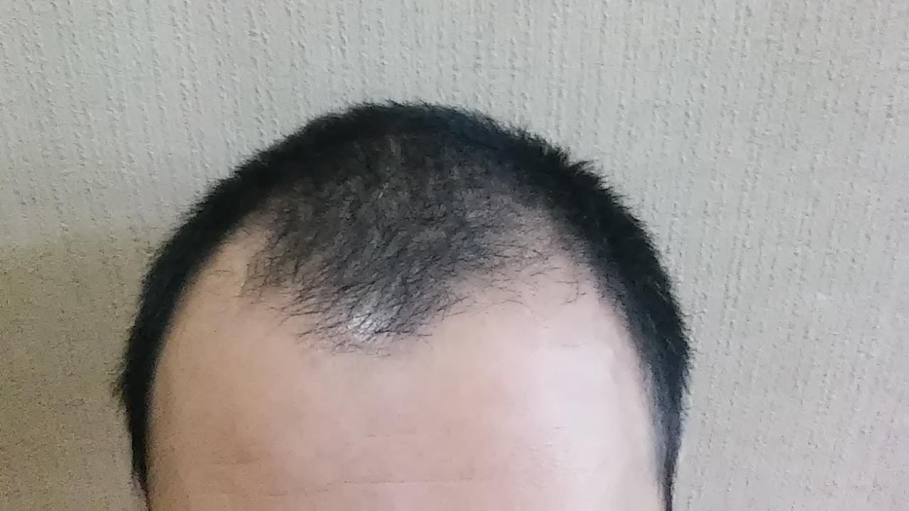 薄毛の種類は?